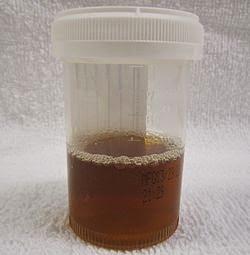 bilirubina-nelle-urine