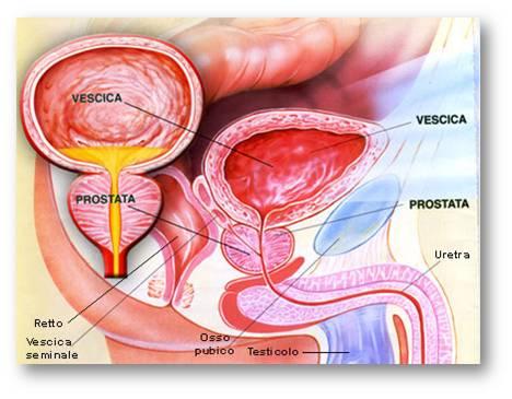 la prostata