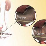 Adenocarcinoma Prostatico (Tumore o Cancro Della Prostata): Rischi e Prevenzione