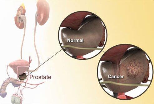Tumore alla Prostata: Sintomi ed Esami Utili
