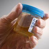 Storia del Test delle Urine: Davvero Affascinante