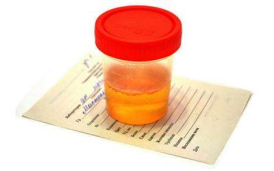 Urina Scura: Cause e Soluzioni di Questo Importante Indicatore