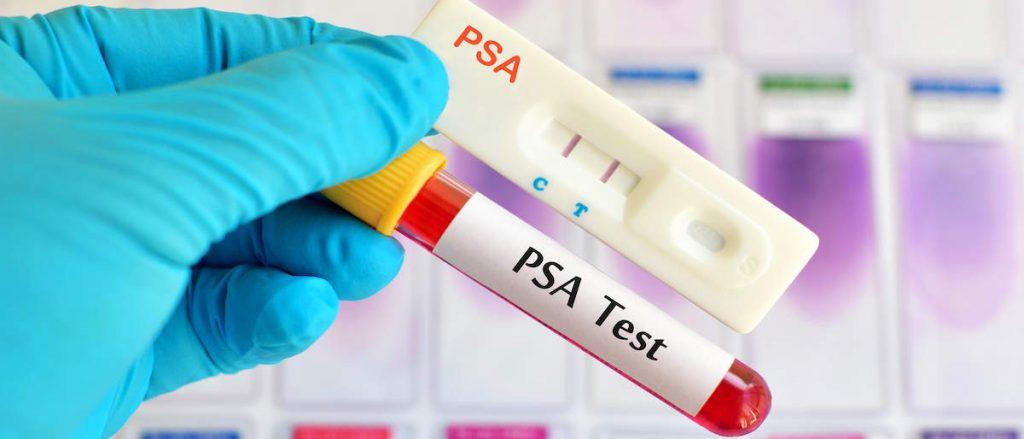 Valori PSA: Cos'è il PSA e Quali Sono i Valori Normali