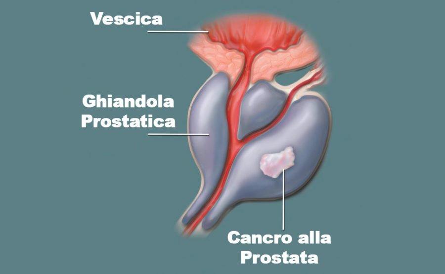 cancro alla prostata