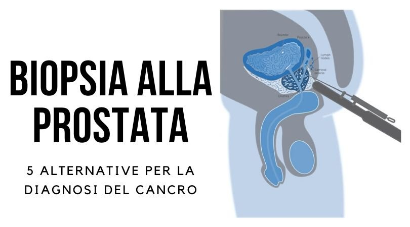 biopsia prostatica alternative